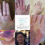アトピー・乾燥肌などの肌トラブルは自然療法(クレイ)で改善&克服できるの?Q&A